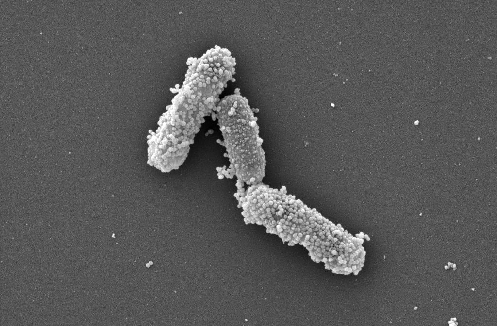 Darmbakterien_angelagerte_Nanopartikel